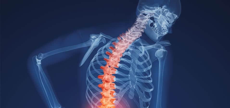 Osteoporosis: Velvet Antler Maintains Bone Density